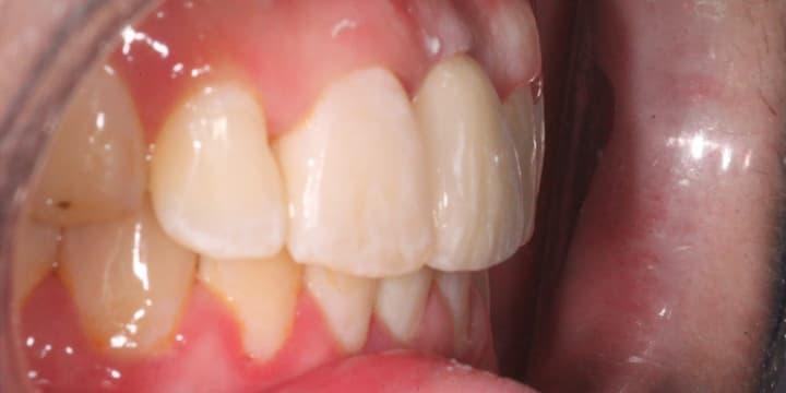 implant-case-04