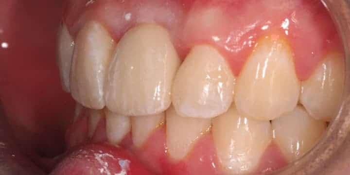 implant-case-05