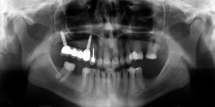 implantcrown-case-03