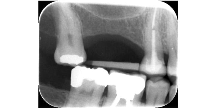 X-ray before sinus lift surgery