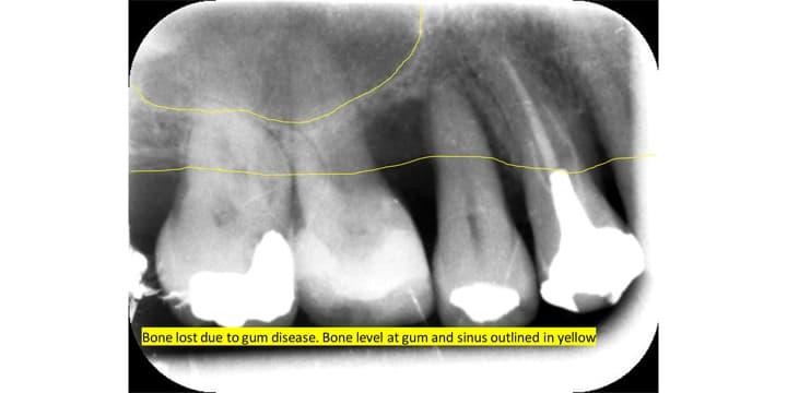 sinus-case-01
