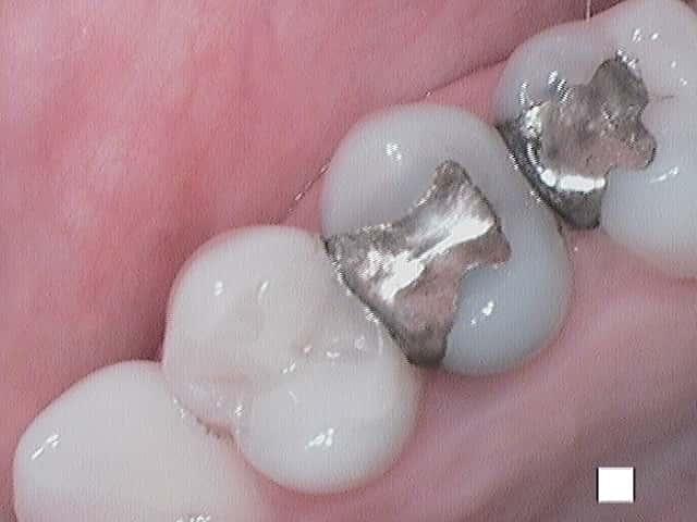 Defective silver amalgam filling