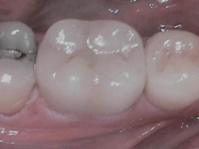 Two completed Cerec Crowns