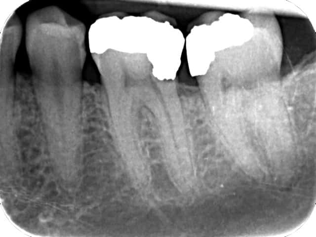 X-ray of defective fillings and tooth with infection