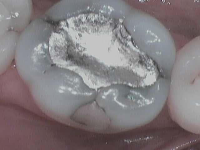 Defective amalgam filling