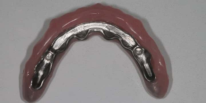 Dentures were chosen here to give better lip and face support as all the gum had been lost
