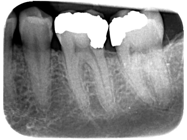 Deem amalgam filling with decay and infection of the nerve of the tooth